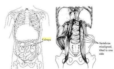 Psoas Kidneys