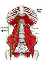 Psoas Spasm diaphragm