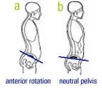anterior-pelvic-tilt_Psoas